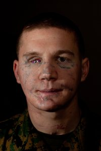 """William """"Kyle"""" Carpenter lost most of his jaw and an eye when he fell on a grenade to shield a fellow Marine from the blast. His body shattered, one lung collapsed, the Marine lance corporal was nearly given up for dead after that 2010 Afghanistan firefight."""