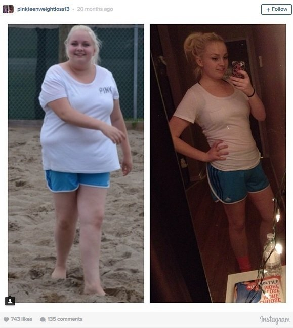 MacKenzie Walker, 15, lost 100 pounds with diet and exercise to reach her dream of becoming a top bodybuilder. MacKenzie recently had a tummy tuck to help reach her goal.