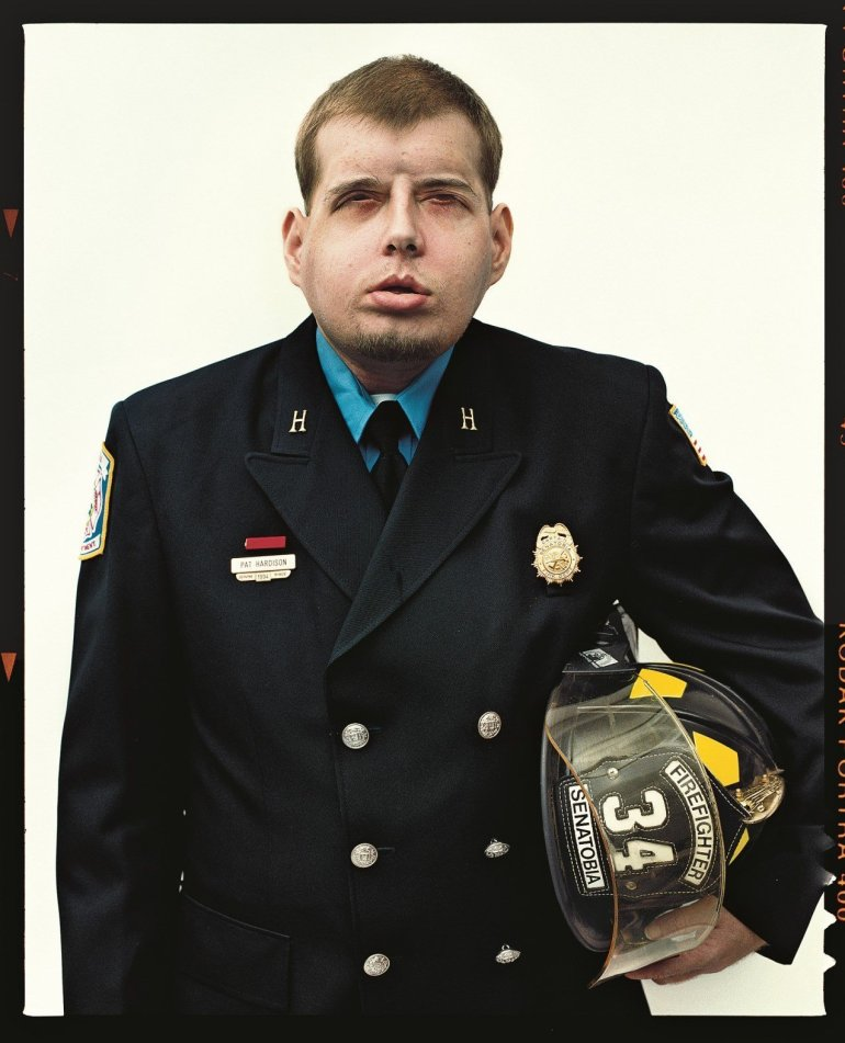 New York Magazine photo of firefighter Patrick Hardinson after his face transplant. In 2011, when Patrick Hardison entered a burning home on a rescue search, the roof collapsed on him and his firefighter's mask burned onto his face, said Dr. Eduardo Rodriguez, who led the team of more than 150 staff members at NYU. Hardison held his breath and jumped out a window. He was left with disfiguring burns across his entire face, head, neck, and upper torso. He lost his eyelids, ears, lips, and most of his nose, as well as his hair, including his eyebrows. After Hardison had more than 70 surgeries, a member of his church in Senatobia, Mississippi, saw stories about a transplant performed by Rodriguez, who was then at the University of Maryland Medical Center. The church member reached out to Rodriguez, who later moved to NYU. After waiting for more than a year, a donor was finally found: David Rodebaugh, a 26-year old bike mechanic who died in a biking accident on August 12, and whose heart, liver, kidney, eyes and bones went to other recipients. (Photo: Norman Jean Roy/New York Magazine)