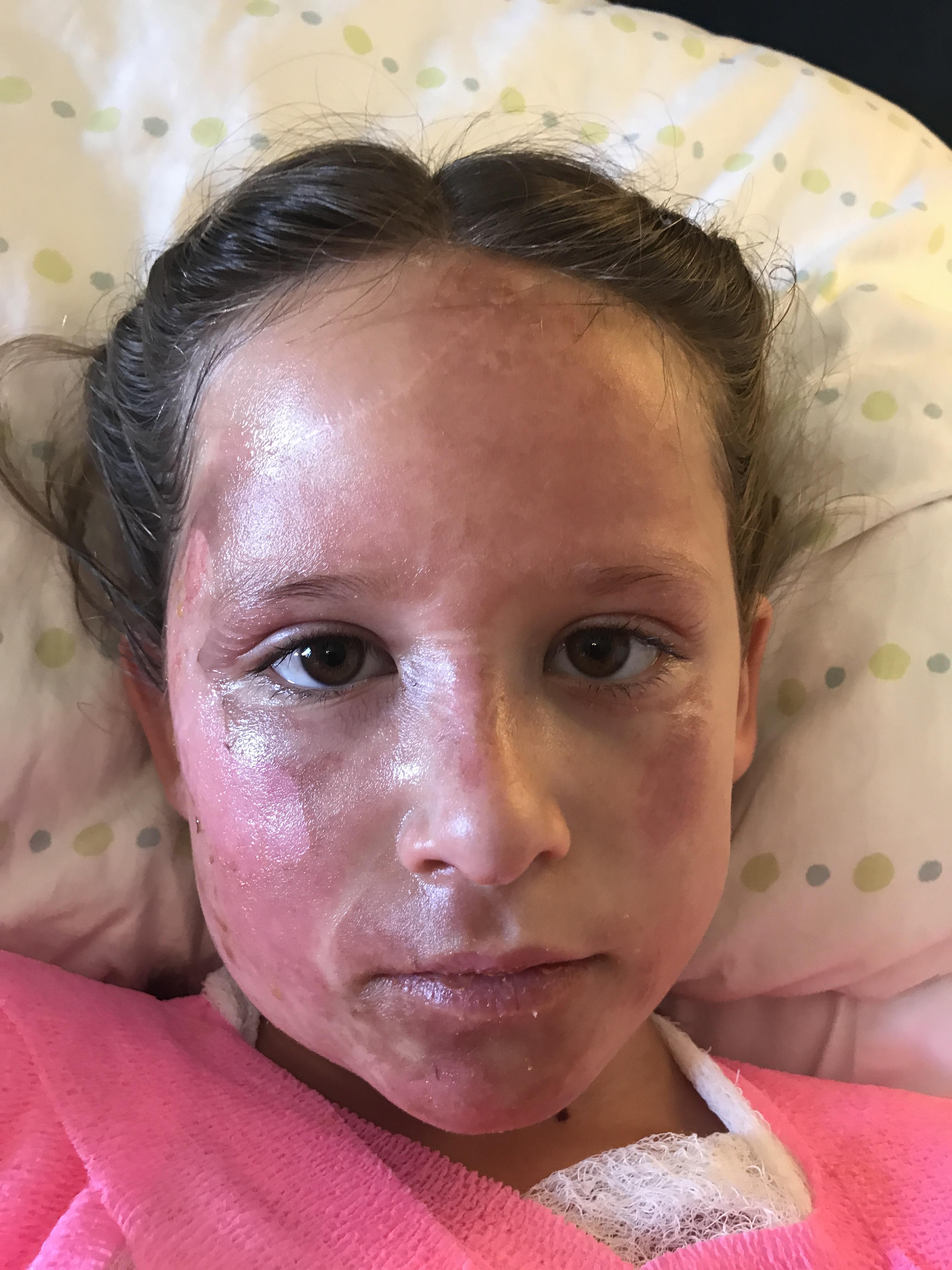 Caroline Face4