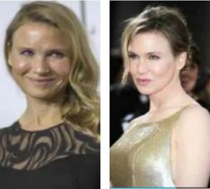 (Renee Zellweger after/before photo; courtesy NDN video)