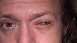 Chad Groeschen developed a dangerous bacterial infection in his left eye after sleeping in contact lenses. (Courtesy: CNN)