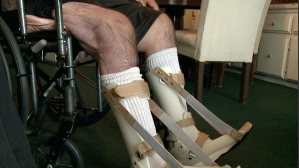 Tony Carpenter sits in a wheelchair after being hospitalized for fleshing-eating bacteria.