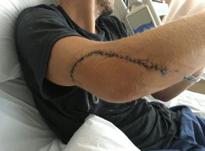 Ryan Boarman's elbow