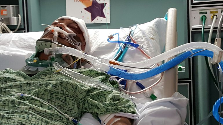 Henry Rader was placed in a coma after being viciously beaten with a hammer at his North Park auto repair shop.