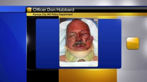 FOX 4 obtained this photo with permission from the family of Master Patrol Officer Don Hubbard. It was taken after he was involved in a fight and shooting with assault suspect Anthony Bruno.