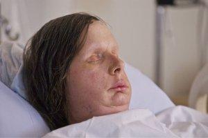 Face Transplant Recipient Charla Nash