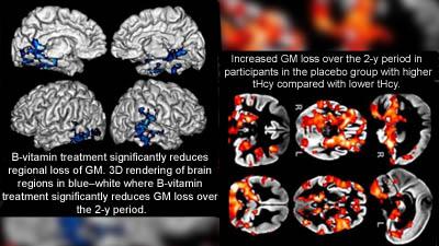 Vitamin B and Alzheimer's