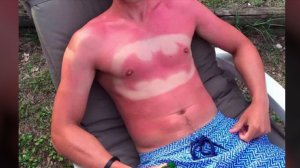 This guy burned the Batman symbol on his chest.