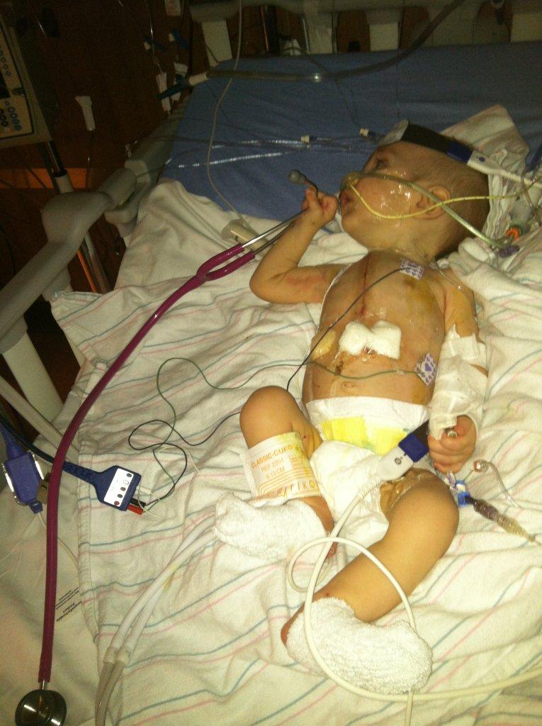Michael Moretti after heart surgery/Joe Moretti