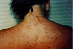 People who were stung by sea lice do not realize it until a rash develops. (Florida Department of Public Health)