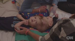 Anias and Jadon McDonald are twins conjoined at the head. Their birth was rare; science says the boys are one in millions. At 13 months old they are undergoing separation surgery