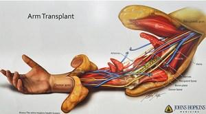 arm-transplant