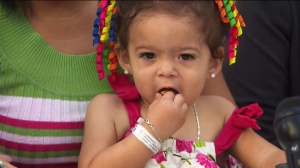 Ana Paula was born in a rural village in Panama joined at the pelvis with her twin sister. (Credit: KTLA)