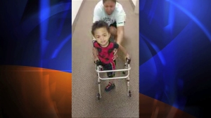 A 2-year-old amputee from New Jersey could be seen learning to walk in a YouTube video posted by his mother on July 4, 2014. (Credit: YouTube user Nikki  Sessoms)