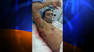 Steve Robles was attacked by a shark on July 6, 2014, sustaining injuries to his right hand and torso area. He is pictured at UCLA Medical Center. (Credit: Robles family)