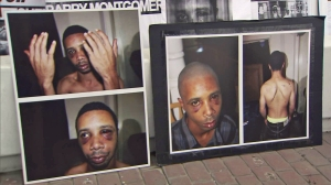 Barry Montgomery is shown is photos displayed at a Aug. 13, 2014, news conference about his violent July 14 arrest. (Credit: KTLA)