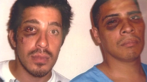 A photo provided by the Hernandez family shows two brothers after what they said was a violent encounter with Los Angeles police, allegedly including Officer Sharlton Wampler, in August 2009.