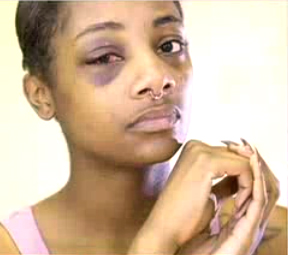 Miyekko Durden-Bosley is pictured with the broken eye socket she sustained when being arrested by a Seattle police officer in June 2014. (Credit: KIRO 7)