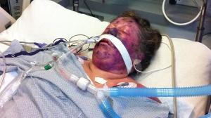 Janet Garner is seen in an ICU after after she developed pneumococcal sepsis. This image was provided by Garner's attorney Moseley Collins.