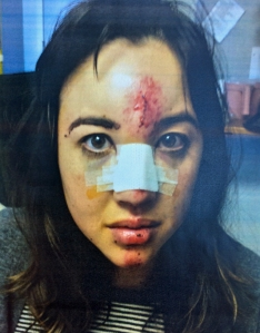 Alexandra Hollon, the mother injured in a hit-and-run Monday, is seen in a photo provided by the South Pasadena Police Department on Dec. 22, 2014.