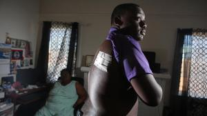 Jamar Nicholson shows the wound where a bullet entered his back. The bullet is still lodged near his spine. (Credit: Irfan Khan / Los Angeles Times)