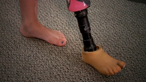 This prosthetic leg was the reason young Averie Mitchell couldn't go down a slide at an Oklahoma water park, her family says. (Credit: KFOR)