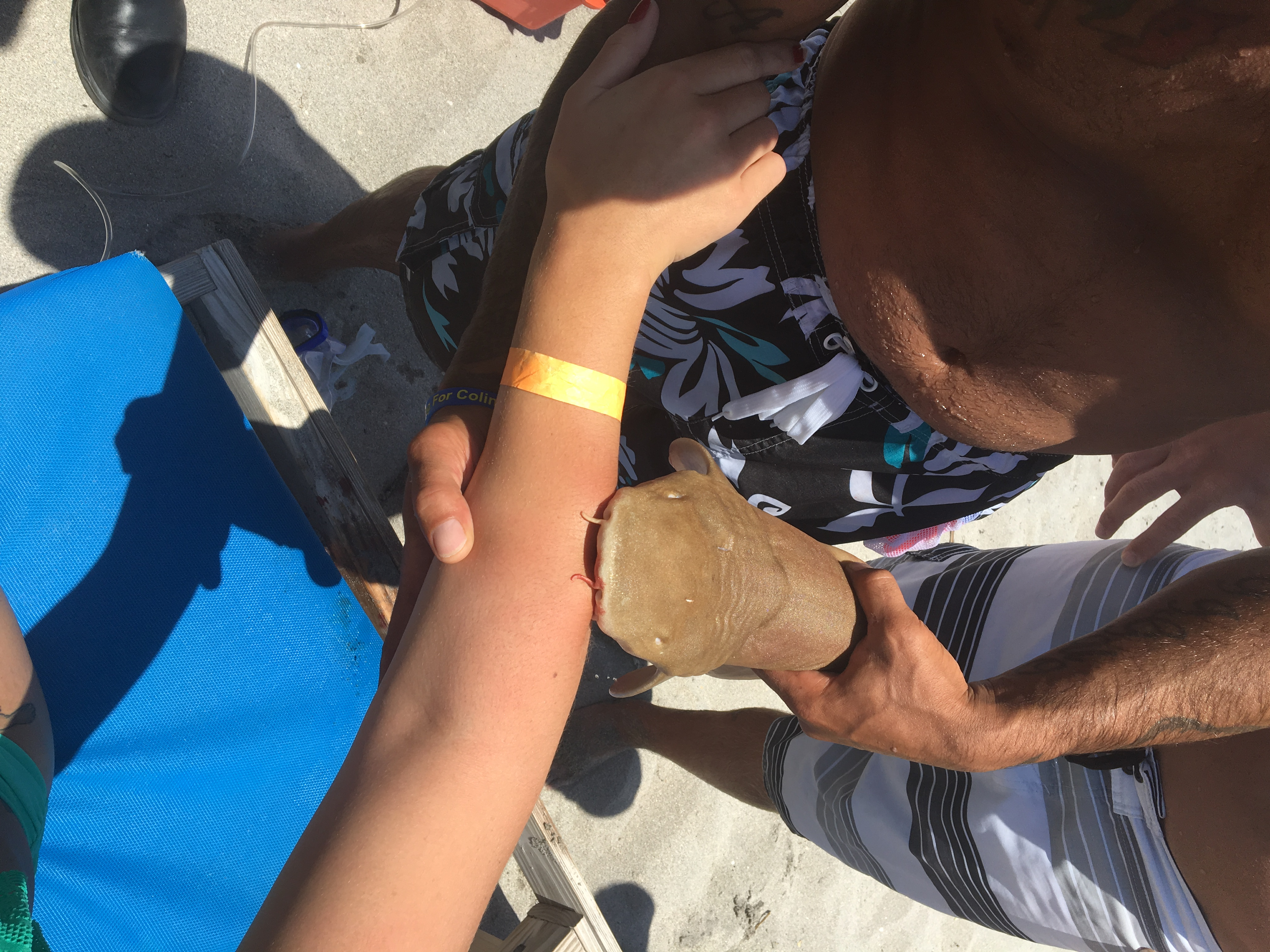 A photo provided by Boca Raton Fire Rescue Services show a nurse shark attached to a woman's arm in Boca Raton on May 15, 2016.