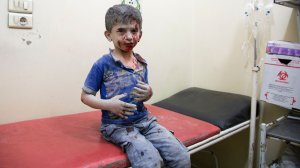 A Syrian boy awaits treatment at a make-shift hospital following air strikes on rebel-held eastern areas of Aleppo on Sept. 24, 2016. (Credit: Karam Al-Masri/AFP/Getty Images)
