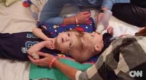 Anias and Jadon McDonald are twins conjoined at the head. Their birth was rare; science says the boys are one in millions. At 13 months old they are undergoing separation surgery. (Credit: CNN)