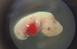 A four-week old pig embryo that had been injured with human stem cells. (Credit: Salk Institute)