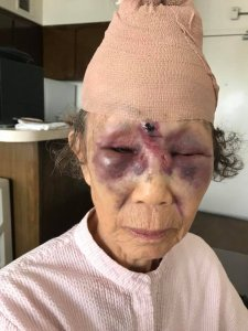 Mi Reum Song is seen after her granddaughter says she was attacked in Koreatown on Feb. 11, 2018. (Credit: Yujin Ko)