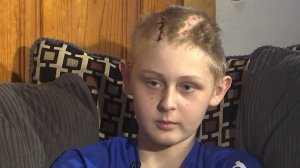 Trenton McKinley is being called a miracle after suffering severe brain trauma from a dune buggy accident. (Credit: WALA via CNN Wire)