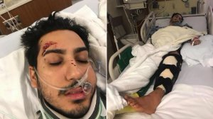 Michael Angelo Gomez-Filippi recovers in the hospital after being struck by a hit-and-run driver in Upland in these undated photos provided by his family.
