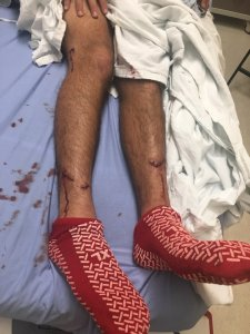 Nick Wapner's bites are shown in a photo provided by his friend, Chris Scopes, on Jan. 8, 2019.