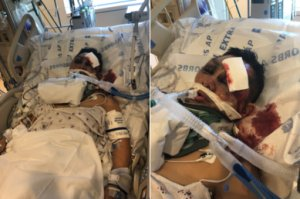 A 45-year-man named Esteban is seen in the hospital after being struck by a hit-and-run driver while on his bicycle in South Los Angeles on March 28, 2019. (Credit: L.A. Police Department)