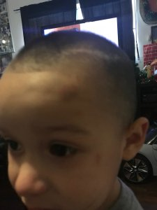 Damien Ventura is seen with facial injuries in an undated cellphone photo his father Oscar took released by the Claypool Law Firm on March 1, 2019.