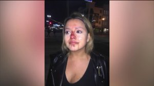 A woman said she suffered a broken nose after being punched by a man at a bar in Long Beach on April 16, 2019. (Credit: Courtesy)