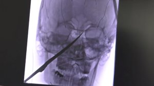 This x-ray, provided by the University of Kansas Health System and obtained by CNN, shows the knife imbedded into Eli Gregg's face.